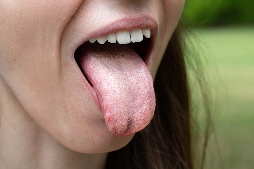 mujer con candidiasis oral